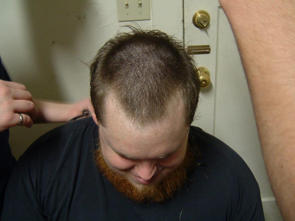 Greffe de_ cheveux